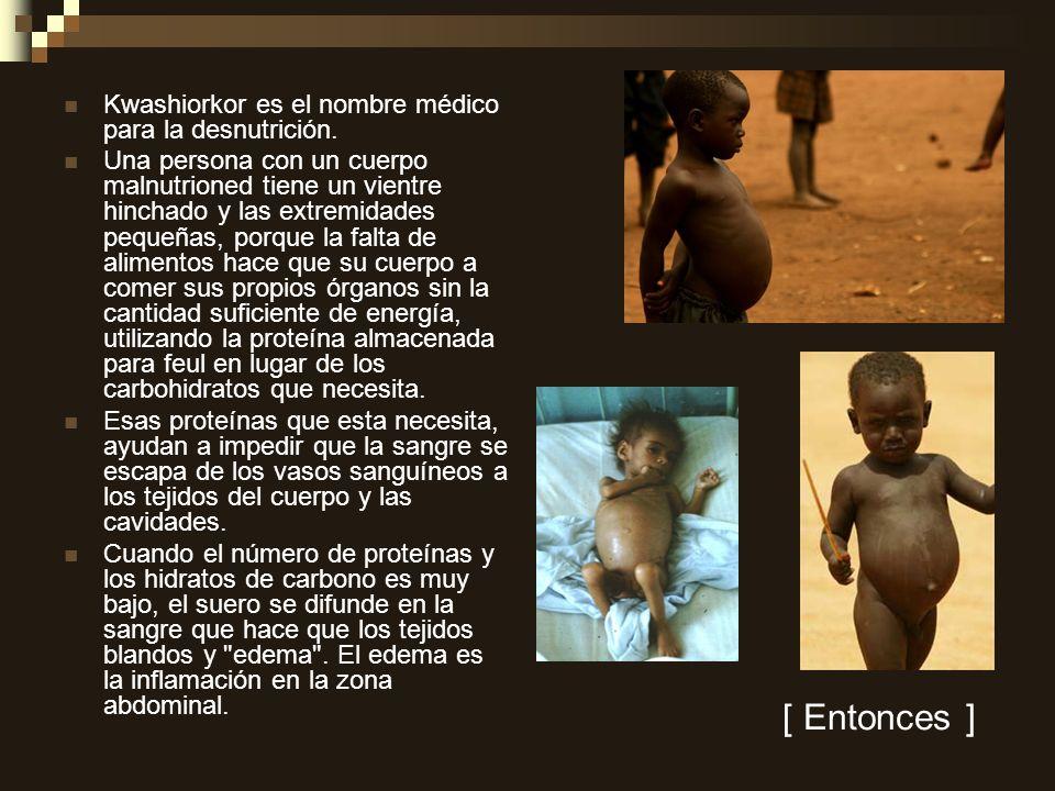 [ Entonces ] Kwashiorkor es el nombre médico para la desnutrición.